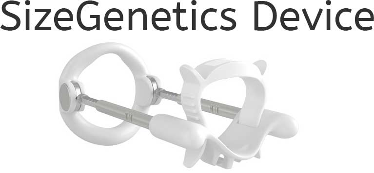 SizeGenetics Device